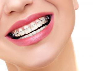 Mueven los dientes - Ortodoncia