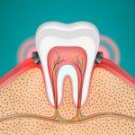 Diente con gingivitis