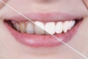 Imagen comparativa de antes y despues del tratamiento
