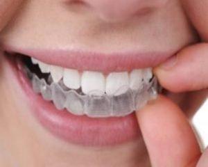Placas para los dientes