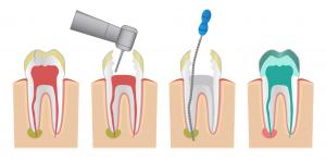 Endodoncia-Paso a paso