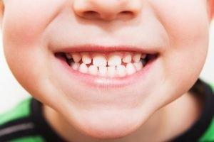 Dientes de leche - Niño mostrando los dientes