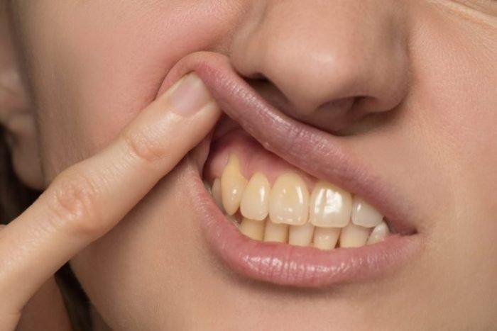 Manchas en los dientes - Mujer con dientes amarillos