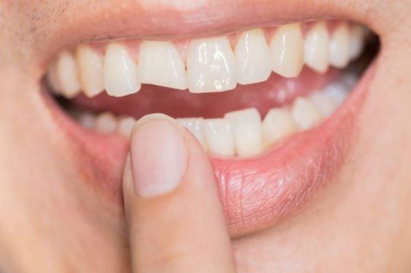 Traumatismo dental - Diente fracturado