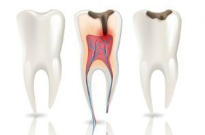 Caries tipos