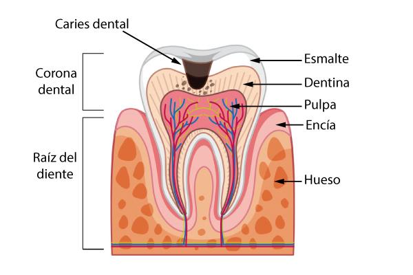 Estructura del diente y caries