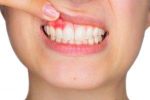 Se mueven mis dientes - Imagen de encía inflamada