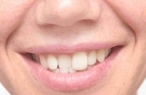 mujer con movimiento dental