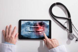 Muelas de juicio - radiografía
