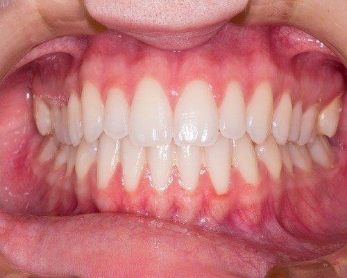 dientes apretados en el dentista
